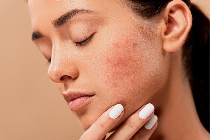 Skin Disorders Related to Various Skin Types
