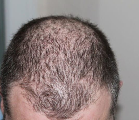 How to Stop Hair Fall and Regrow Hair Naturally