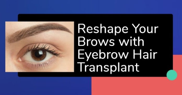 Eyebrow Hair Transplant